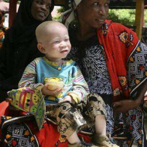 Tanzánie je jednou ze zemí s největším procentem albínů. Jsou často loveni šamany pro výrobu lektvarů.