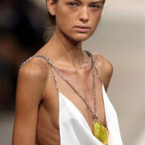 Podvyživené modelky jsou v Izraeli z důvodu boje proti anorexii zakázané.